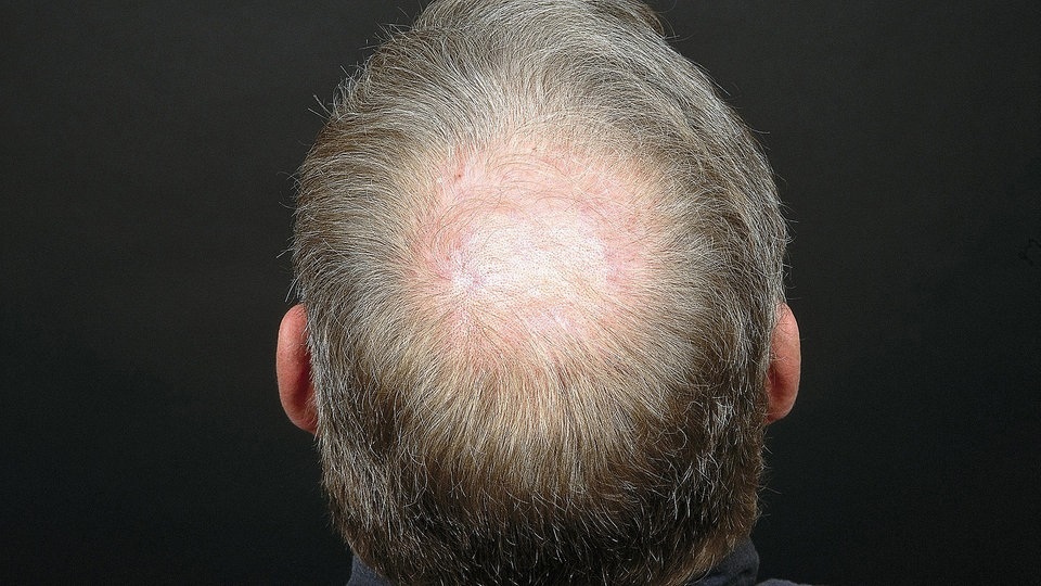 Der Haarausfall der dsungarischen Hamster