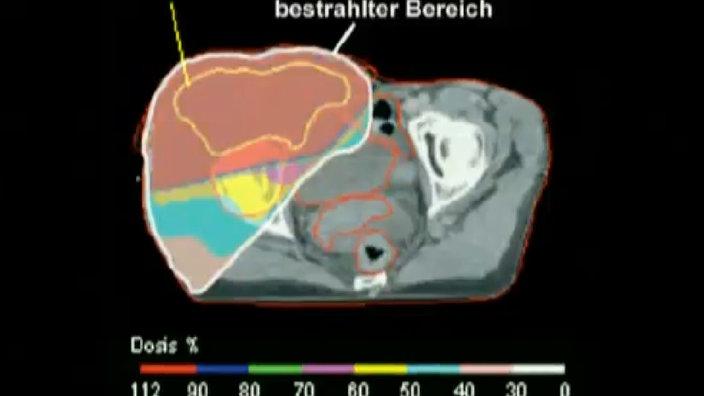 Abbildung zeigt den bestrahlten Bereich eines Gehirnes.