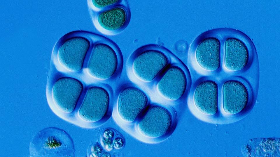 algen evolution pflanzen natur planet wissen. Black Bedroom Furniture Sets. Home Design Ideas